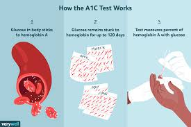 A1c Levels Chart Type 2 Diabetes The A1c Test Uses Procedure Results