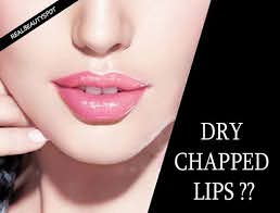10 best remes for dry chapped lips