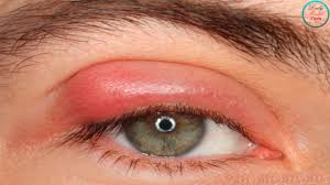 Easy and Safe Ways to Get Rid of Styes Fast at Home - YouTube