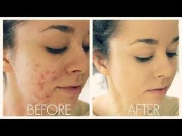 how to cover acne scars if you want to easy makeup transformation