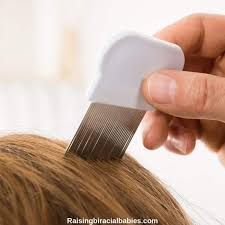 treat lice on curly mixed hair