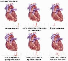 Реферат нарушения ритма сердца > решение найдено Реферат нарушения ритма сердца