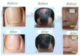before and after taking silica supplements water soluble silica umo silica silica