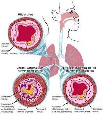 Obat alami untuk mengobati penyakit asma