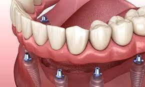 dental implants cost break down