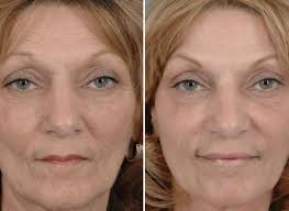 How Long Does Botox Last How Long Does Botox Last Toronto Botox Skinatomy Laser