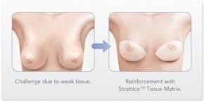 breast enhancement cost