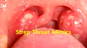 throat mimics pearls pitfalls