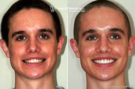 Overbite Correstion Without Braces