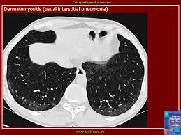 рентгенодиагностика заболеваний легких реферат