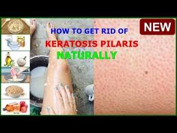 keratosis pilaris en skin