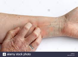 Itchy Arm Stock Photos & Itchy Arm Stock Images - Alamy