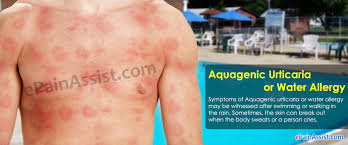 Aquagenic Urticaria or Water Allergy|Causes|Symptoms|Treatment|Risk ...