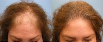 Male Pattern Baldness In Women Amazing US Hair Transplant Woman Hair Restoration
