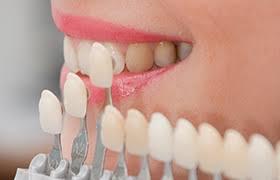 Porcelain Veneers Aurora Cosmetic Dentist Chipped Tooth
