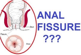 Best Tips On Anal Fissures Treatment & Cure Guide. SteemKR