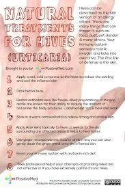 Pin by Healthy & Smooth on Hives Relief | Pinterest | Remedies ...