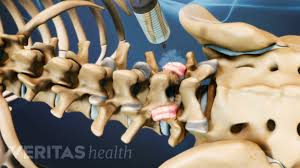 Whats A Facet Facet Joint Injection Results And Follow Up