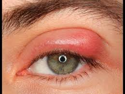Swollen Eyes Remedy - Natural Home Remedies To Cure Swollen Eyes ...