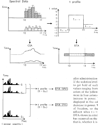 Anesthesia Monitoring Chart Figure 3 From Density Modulated Ts Array A New Technique