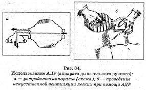 Артериальная гипертензия курсовая работа ⋆ Лечение Сердца артериальная гипертензия курсовая работа артериального давления