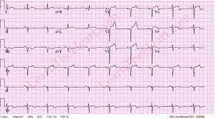 Anterior St Elevation Myocardial Infarction Mi Ecg 4