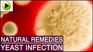 Yeast Infection - Natural Ayurvedic Home Remedies - YouTube