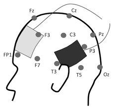 Electrode Montage Of The Fronto Temporal Tdcs Protocol Used