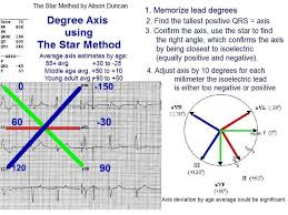 the star method of axis determination electrocardiology instruction the star method ecg axis degree by alison duncan