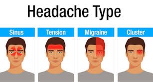 Sakit kepala di dahi dapat disebabkan oleh berbagai kondisi kesehatan tertentu. Sakit Kepala Bagian Depan Kening Informasi Dunia Kesehatan