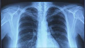 Zadýchávání Nebo Paličkové Prsty Příznaky Plicní Fibrózy Se