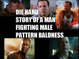 Die Hard: The Story Of A Man Fighting Baldness | WeKnowMemes via Relatably.com