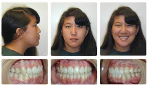 orthodontic before and after photos