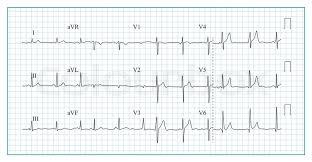 Heart Cardiogram Chart Vector Stock Vector Colourbox