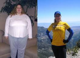 Patients share experiences with weight loss surgery | Las Vegas ...