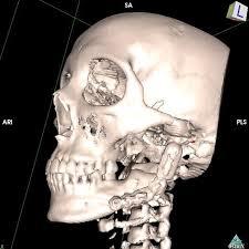 Пластика височно нижнечелюстного сустава тотальным эндопротезом  контрольная МСКТ лицевого черепа через 12 месяцев после операции