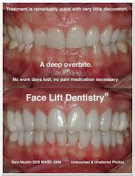 Deep Overbite Before And After Photo Overbite Correction