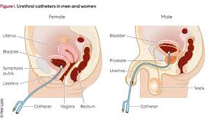 Bladder Catheterisation Prevention And Management Of Urinary Catheter Blockages In
