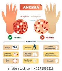Anemia Chart Anemia Images Stock Photos Vectors Shutterstock