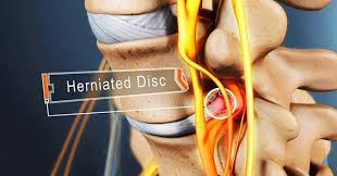 treatment for your herniated disc