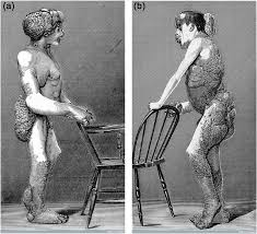 joseph merrick. Plain Joseph Lithographs A And B Of Joseph Merrick 18621890also Known As  To