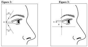 Botox Dosing Chart Botox Cosmetic Dosage Guide Drugs Com