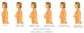 Breast Sagging Images Stock Photos Vectors Shutterstock