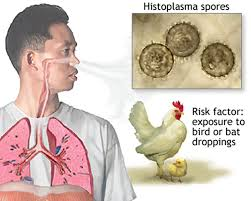 Histoplasmosis - Causes, Symptoms, Diagnosis, Prognosis, Treatment