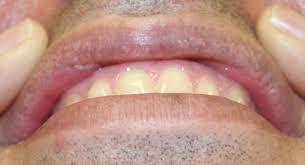 herpes on lip swollen x factor rnkx