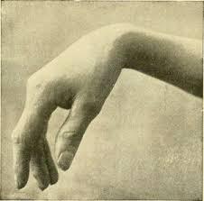 Image result for limp wrist