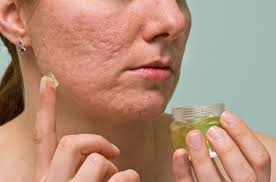 10 super clever natural ways to remove acne scars