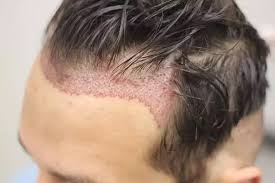 hair transplant market accounted to us 5 272 1 mn in 2017 and is expected to grow at a cagr of 23 6 during the forecast period 2018 2025 to account to