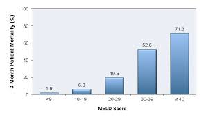 Meld Score Survival Chart Core Concepts Evaluation And Prognosis Of Patients With