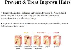 prevent ingrown hairs after shaving